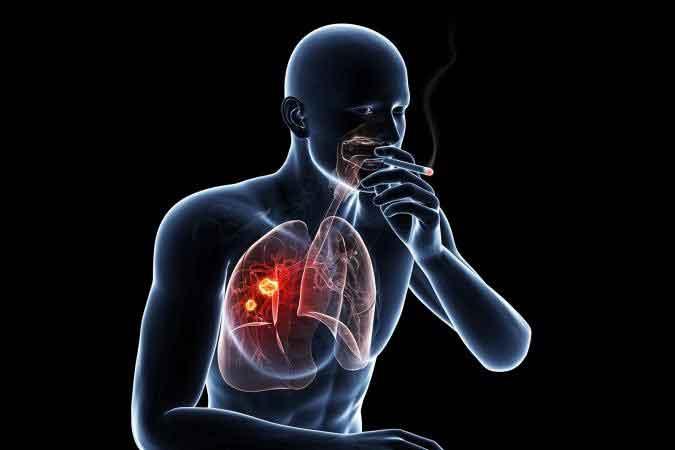 سیگار مارلبرو فیلتر پلاس وان در بسته 10 عددی